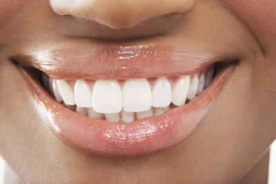 Close up of a woman's smile with dental implants in Apex NC