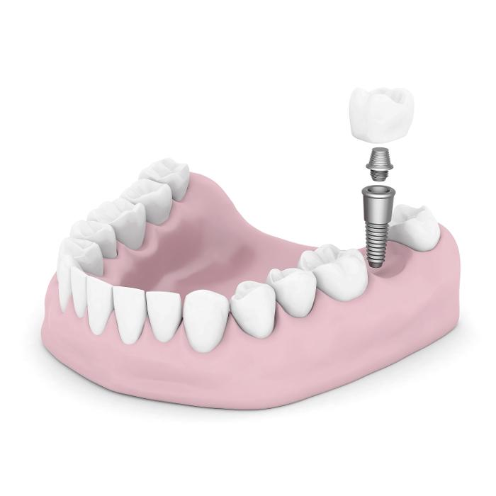 Dental implant replacing bottom tooth at Apex dentist office