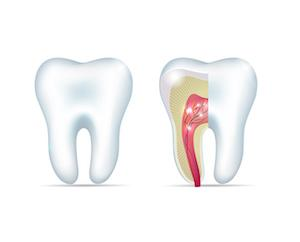 Diagram of healthy tooth and tooth with root infection