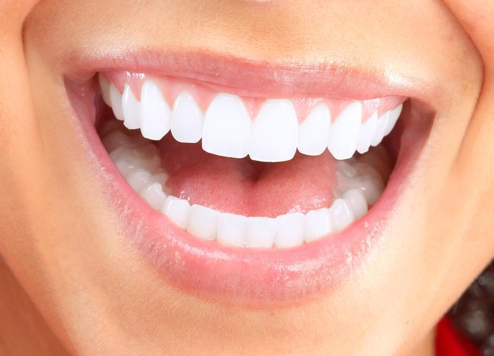 Close up of patients smile after teeth whitening in Apex NC