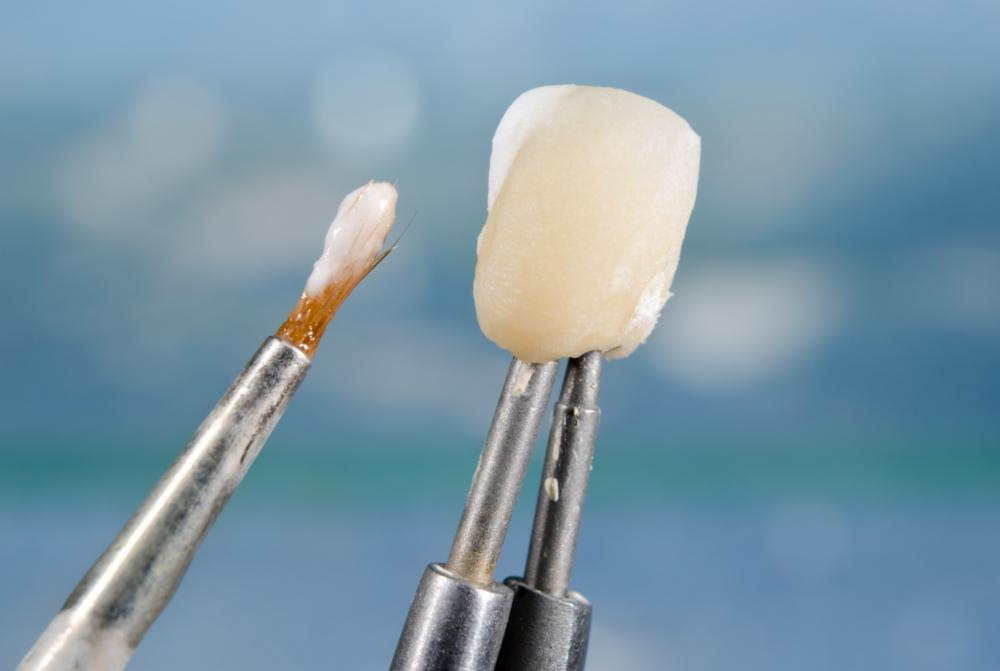 Dental Implants | Apex, NC