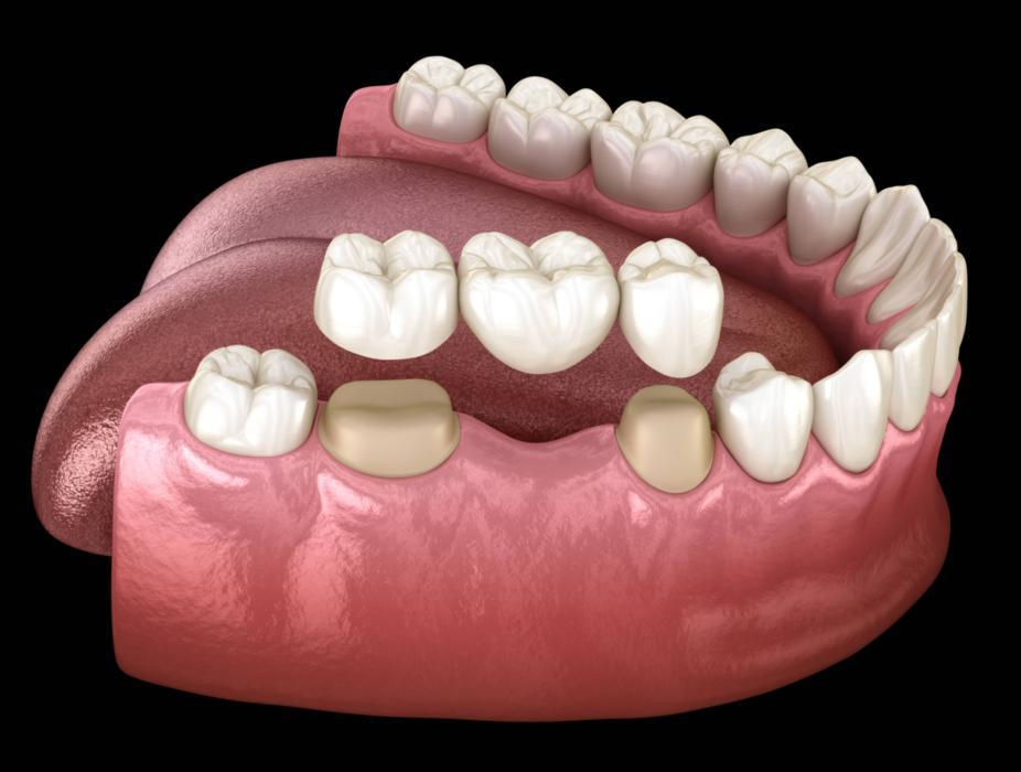 Dental Implants | Austin, TX